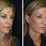 Facelift Beverly HIlls