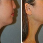 Neck Lift Beverly Hills