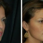 Beverly Hills Rhinoplasty